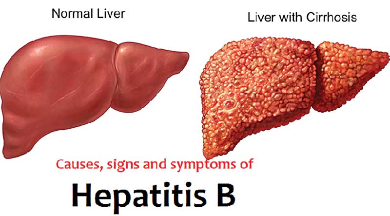 Hepatitis B: causes and minimizing the risk